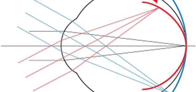 Myopia-case-study-figure-11