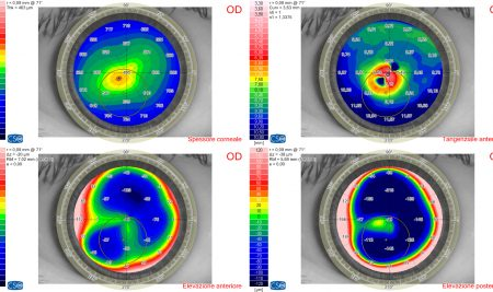 Curvature e spessori della cornea nel cheratocono con tre differenti strumenti, ripetibilità e concordanza