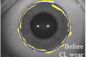 Topografia del limbus corneale prima e dopo l'uso di lenti a contatto morbide